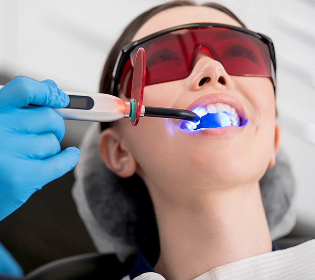 Santa Rosa Professional Teeth Whitening